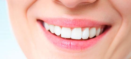Carillas Dentales en Chamberí - Baquero Odontología Familiar-procedimiento