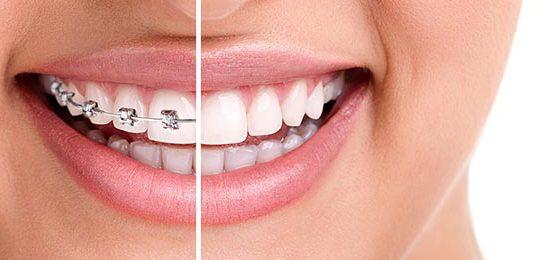 Ortodoncia Brackets Metálicos en Chamberí - Baquero Odontología Familiar