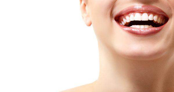 Blanqueamiento Dental en Chamberí - Baquero Odontología Familiar-3