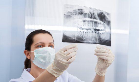Periodoncia en Chamberí - Baquero Odontología Familiar