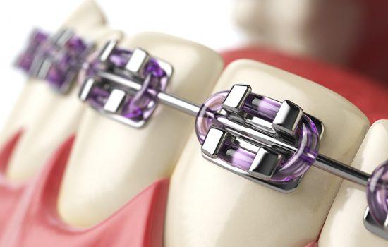 Odontología_Baquero29