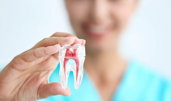 Blanqueamiento Dental en Chamberí - Baquero Odontología Familiar-4
