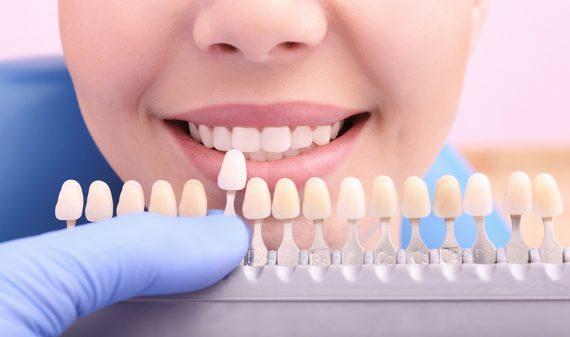 Implantes dentales en Chamberí - Baquero Odontología Familiar