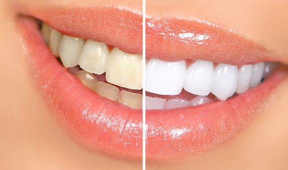 Blanqueamiento Dental en Chamberí - Baquero Odontología Familiar-1