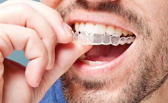 Invisalign en Chamberí - Baquero Odontología Familiar-1