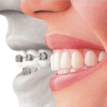 Invisalign en Chamberí - Baquero Odontología Familiar