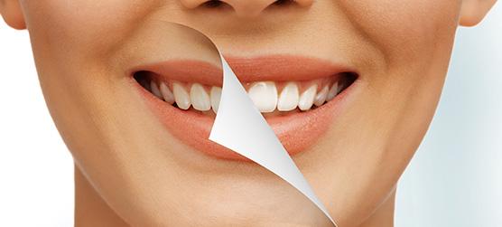 Carillas Dentales en Chamberí - Baquero Odontología Familiar-3