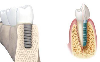 Implantes dentales en Chamberí - Baquero Odontología Familiar-1