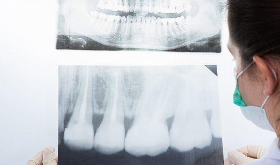 Mínima radiación computarizada en Chamberí - Baquero Odontología Familiar