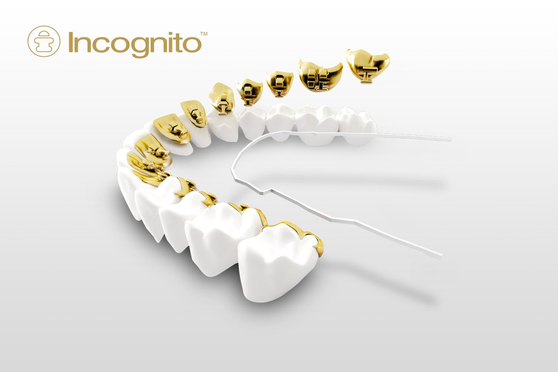 Ortodoncia Lingual Incónito en Chamberí - Baquero Odontología Familiar-4