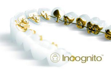 Ortodoncia Lingual Incónito en Chamberí - Baquero Odontología Familiar-5
